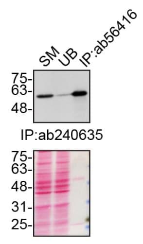 Immunoprecipitation - Anti-SQSTM1 / p62 antibody [2C11] - BSA and Azide free (ab56416)