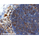 Immunohistochemistry (Formalin/PFA-fixed paraffin-embedded sections) - Anti-SQSTM1 / p62 antibody [2C11] - BSA and Azide free (ab56416)