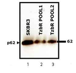 Western blot - Anti-SQSTM1 / p62 antibody - Autophagosome Marker (ab56416)