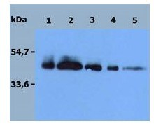 Western blot - Recombinant Human DR4 protein (ab56518)