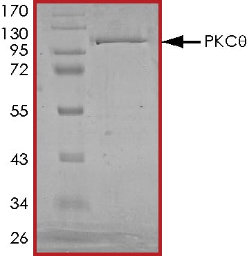SDS-PAGE - Recombinant human PKC theta/PRKCQ protein (ab56641)