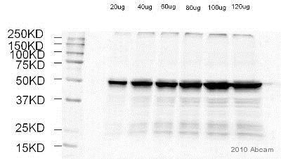 Western blot - Anti-Tubulin antibody - Loading Control (ab56676)