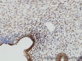 Immunohistochemistry (Formalin/PFA-fixed paraffin-embedded sections) - Anti-YAP1 antibody (ab56701)