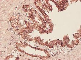 Immunohistochemistry (Formalin/PFA-fixed paraffin-embedded sections) - Anti-PHGDH/Malate dehydrogenase antibody (ab57030)
