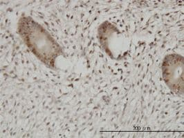 Immunohistochemistry (Formalin/PFA-fixed paraffin-embedded sections) - Anti-UHRF1 antibody (ab57083)