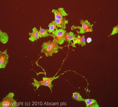 Immunocytochemistry/ Immunofluorescence - Anti-RRM2 antibody [1E1] (ab57653)