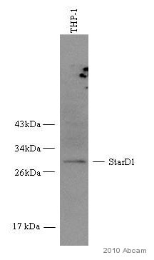 Western blot - Anti-StAR antibody (ab58013)
