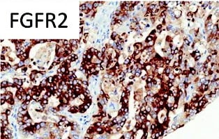 Immunohistochemistry (Formalin/PFA-fixed paraffin-embedded sections) - Anti-FGFR2 antibody (ab58201)