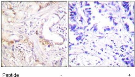 Immunohistochemistry (Formalin/PFA-fixed paraffin-embedded sections) - Anti-PIAS3 antibody (ab58406)
