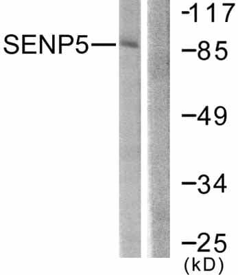 Western blot - Anti-SENP5 antibody (ab58420)