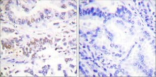 Immunohistochemistry (Formalin/PFA-fixed paraffin-embedded sections) - Anti-XRCC3 antibody (ab58467)