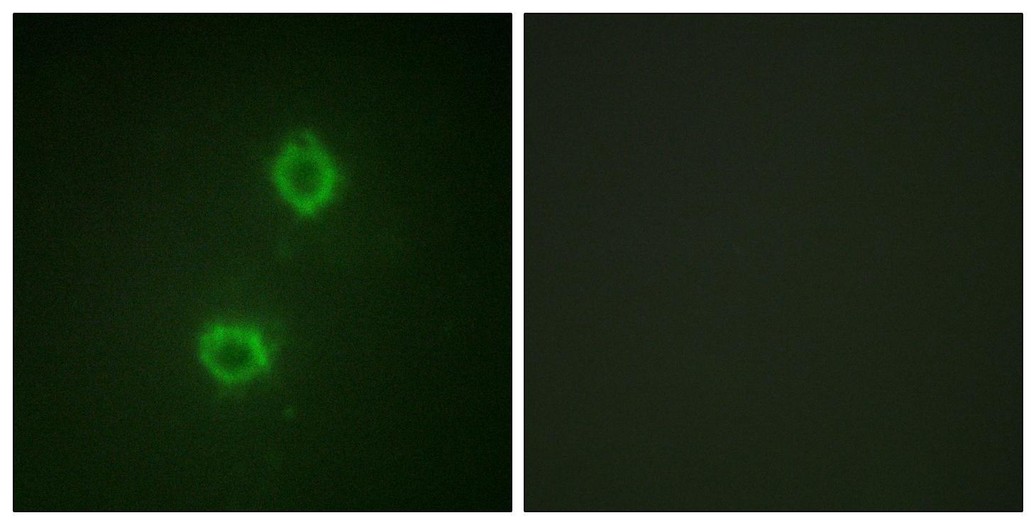 Immunocytochemistry/ Immunofluorescence - Anti-FGFR1 antibody (ab58516)