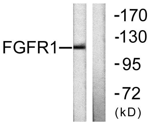 Western blot - Anti-FGFR1 antibody (ab58516)