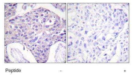 Immunohistochemistry (Formalin/PFA-fixed paraffin-embedded sections) - Anti-FOXO1 + FOXO3 + FOXO4 antibody (ab58518)