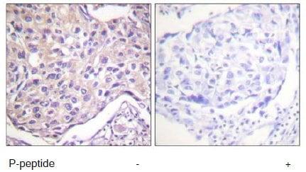 Immunohistochemistry (Formalin/PFA-fixed paraffin-embedded sections) - Anti-GRK2 (phospho S29) antibody (ab58520)