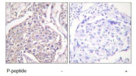 Immunohistochemistry (Formalin/PFA-fixed paraffin-embedded sections) - Anti-Hsp20 (phospho S16) antibody (ab58522)