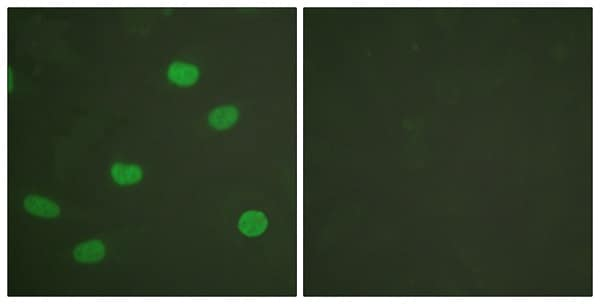 Immunocytochemistry/ Immunofluorescence - Anti-Lamin A + Lamin C (phospho S392) antibody (ab58528)