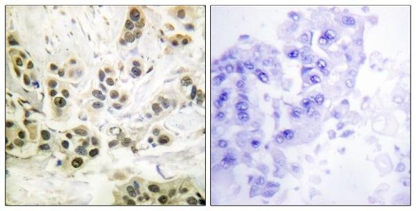 Immunohistochemistry (Formalin/PFA-fixed paraffin-embedded sections) - Anti-Lamin A + C (phospho S392) antibody (ab58528)