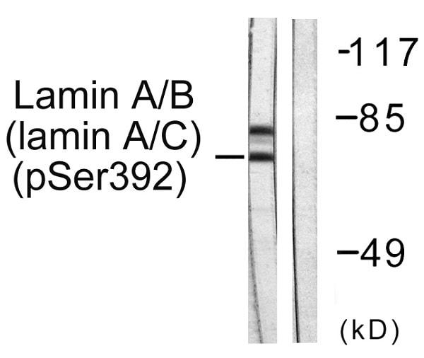 Western blot - Anti-Lamin A + C (phospho S392) antibody (ab58528)