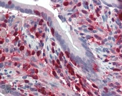 Immunohistochemistry (Formalin/PFA-fixed paraffin-embedded sections) - Anti-S100A4 antibody (ab58597)