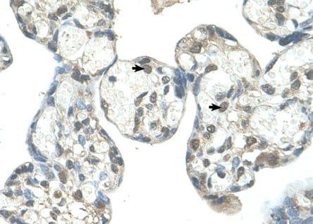 Immunohistochemistry (Formalin/PFA-fixed paraffin-embedded sections) - Anti-EPS8L1 antibody (ab58687)