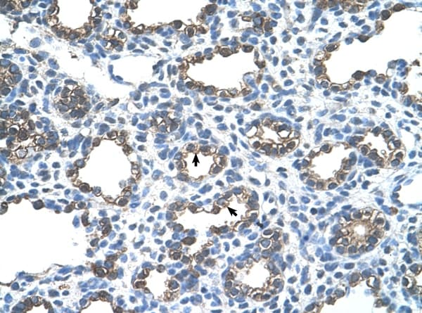 Immunohistochemistry (Formalin/PFA-fixed paraffin-embedded sections) - Anti-Ankyrin erythroid / ANK antibody (ab58698)