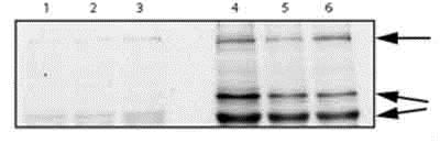 Western blot - Anti-alpha 2 Macroglobulin antibody (ab58703)