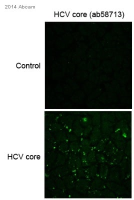 Immunocytochemistry/ Immunofluorescence - Anti-Hepatitis C  Virus Core Antigen antibody (ab58713)