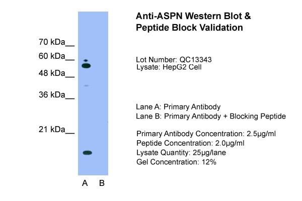 Western blot - Anti-Asporin antibody (ab58741)