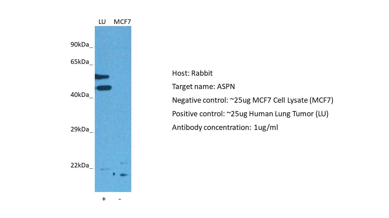 Anti-Asporin antibody (ab58741)