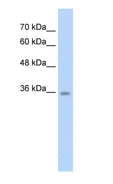 Western blot - Anti-C6orf134/TAT antibody (ab58742)