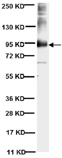 Western blot - Anti-MMP9 antibody [56-2A4] (ab58803)