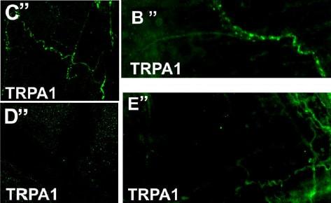 IHC - Wholemount - Anti-TRPA1/TSA antibody (ab58844)