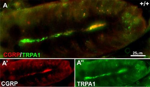 Immunohistochemistry (PFA perfusion fixed frozen sections) - Anti-TRPA1/TSA antibody (ab58844)