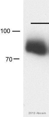 Western blot - Anti-Nephrin antibody (ab58968)