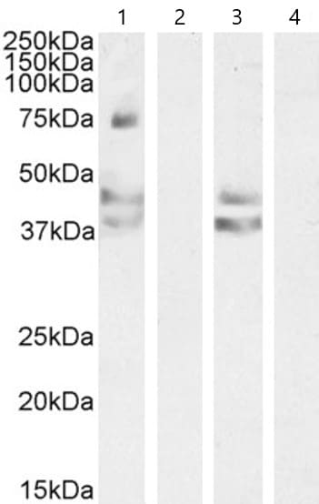 Western blot - Anti-Angiotensin II Type 1 Receptor antibody (ab59018)