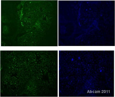 Immunocytochemistry/ Immunofluorescence - Anti-HNF-1B antibody (ab59118)