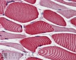 Immunohistochemistry (Formalin/PFA-fixed paraffin-embedded sections) - Anti-TBC1D4 antibody (ab59121)