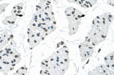 Immunohistochemistry (Formalin/PFA-fixed paraffin-embedded sections) - Anti-RBM22 antibody (ab59157)