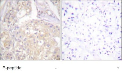 Immunohistochemistry (Formalin/PFA-fixed paraffin-embedded sections) - Anti-FGFR1 (phospho Y766) antibody (ab59180)