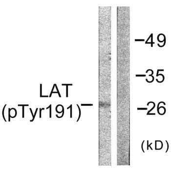 Western blot - Anti-LAT (phospho Y191) antibody (ab59197)