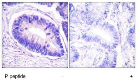 Immunohistochemistry (Formalin/PFA-fixed paraffin-embedded sections) - Anti-Myosin Phosphatase (phospho T853) antibody (ab59203)