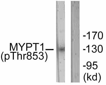 Western blot - Anti-Myosin Phosphatase (phospho T853) antibody (ab59203)