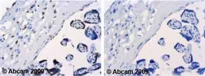 Immunohistochemistry (Formalin/PFA-fixed paraffin-embedded sections) - Anti-CSF-1-R antibody (ab59231)