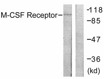 Western blot - Anti-CSF-1-R antibody (ab59231)