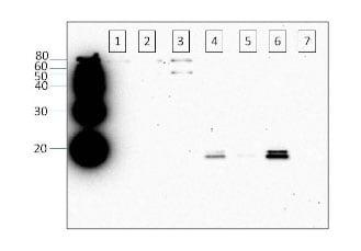 Western blot - Anti-Alpha-synuclein (phospho S129) antibody (ab59264)