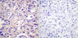 Immunohistochemistry (Formalin/PFA-fixed paraffin-embedded sections) - Anti-Thymidine Kinase 1/TK1 (phospho S13) antibody (ab59266)