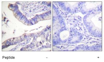 Immunohistochemistry (Formalin/PFA-fixed paraffin-embedded sections) - Anti-Bcl-2 antibody (ab59348)