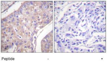 Immunohistochemistry (Formalin/PFA-fixed paraffin-embedded sections) - Anti-GAB1 antibody (ab59362)