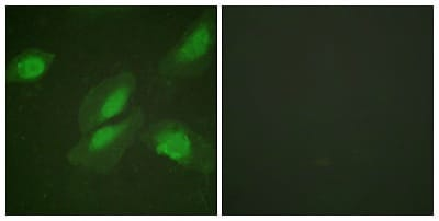 Immunocytochemistry/ Immunofluorescence - Anti-AKT1 antibody (ab59380)